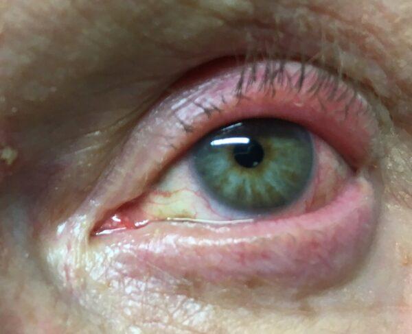 Entzündene Auge